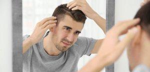 Hombre caida cabello
